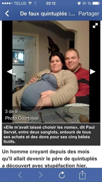 Fake quintuplet pregnancy