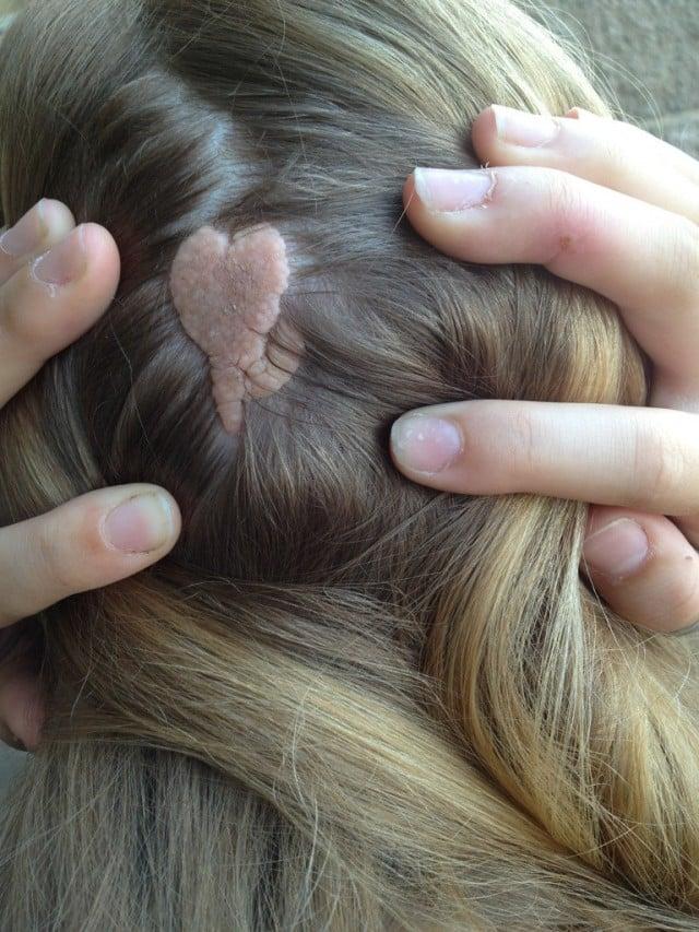Naevi (moedervlekken, moles, birthmarks) overzicht en indeling